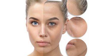 tratamientos de belleza facial